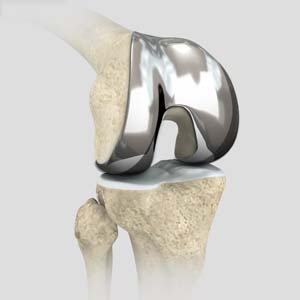 Outpatient Total Knee Replacement